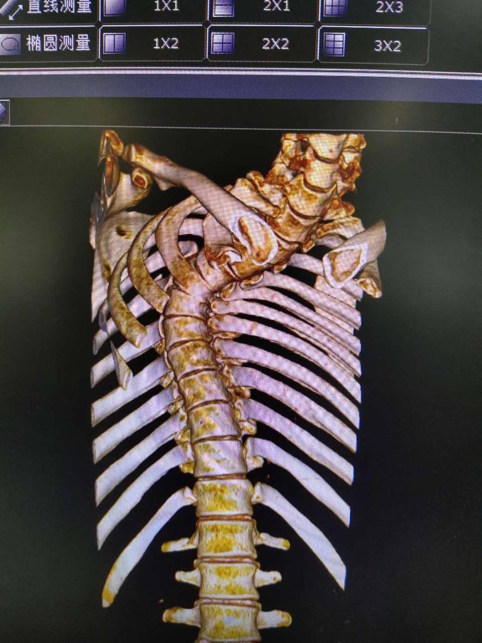 """一个手术长高5公分,脊柱侧弯的他可以""""直""""面人生了!"""